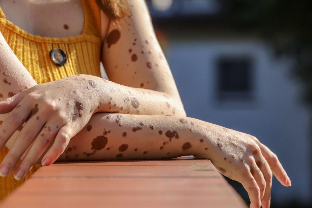 Marikas Arme: Der kongenitale Nävus ist ganz unterschiedlich ausgeprägt. (Bild. Claus Hock)